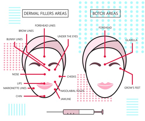 Botox vs dermal fillers in davenport what you need to know diagram what is botox in davenport used to treat ccuart Images